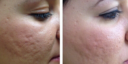 Micro Needling Hautbild nach drei Behandlungen