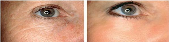Hautbild Micro Needling und Fruchtsäurepeeling